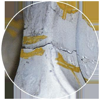 fractured damage repairs
